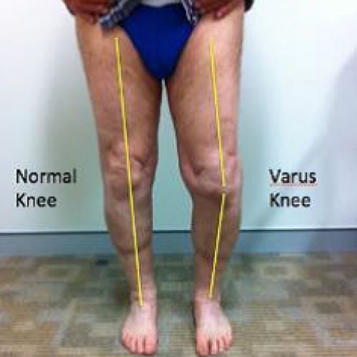 Illustrative Clinical Knee Examination: Observation and Bony Palpation