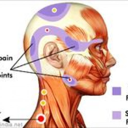 Trigger Points and Myofascial Therapy